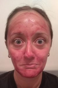 A woman wearing a red acid peel face mask